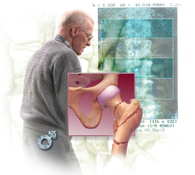 Препараты при остеопорозе у пожилых женщин